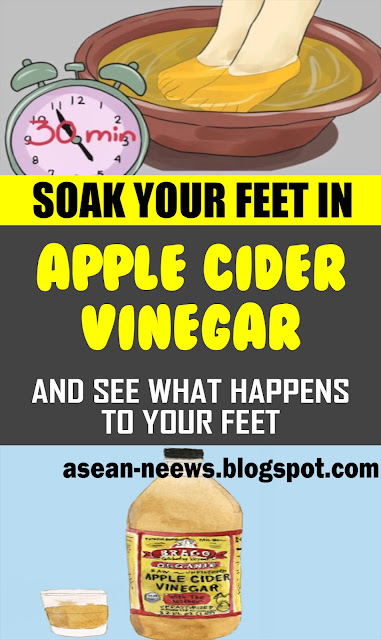 SOAK YOUR FEET IN VINEGAR ONCE A WEEK, AND YOU WILL SEE HOW ALL YOUR DISEASES DISAPPEAR