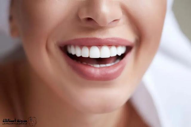 5 أشياء يجب أن تفعلها بعد تبييض أسنانك للحفاظ على بياضها .