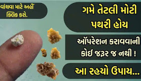 Kidney Stone Causes, Symptoms, Treatment and How to Prevent them