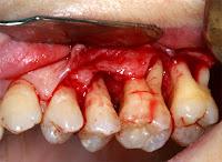 cirugia tratamiento periodontitis piorrea