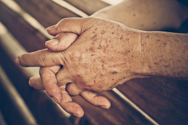 Một số căn bệnh về da ở người cao tuổi