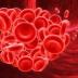 Cara Menghilangkan Darah Beku di Kepala