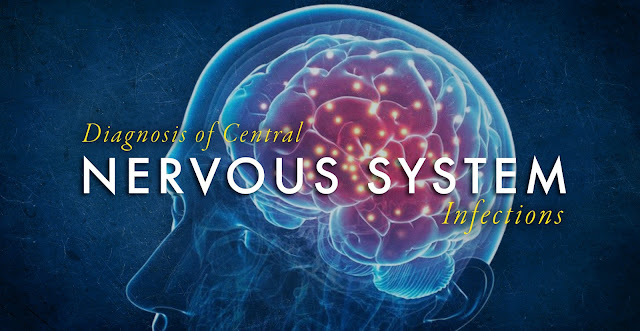 Diagnosis of Central Nervous System Infections Part 2 | El Paso, TX Chiropractor