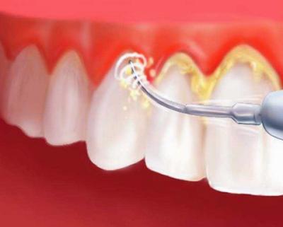 Cara Praktis Mencegah Plak Gigi