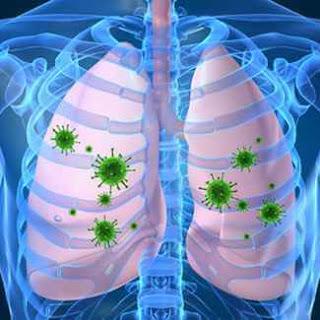 zatürre akciğer mikroplar