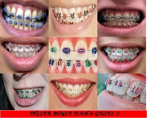 Renkli Diş Telleri