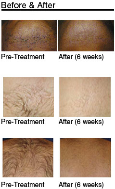 Aspects That Influence The Price Of Laser Hair Removal