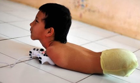Limbless PlayStation Gamer Uses Chin And Shoulder To Play: BORN DIFFERENT