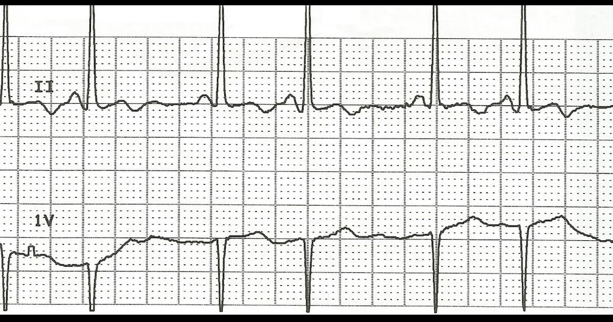 Float Nurse: Practice EKG Rhythm Strips 113