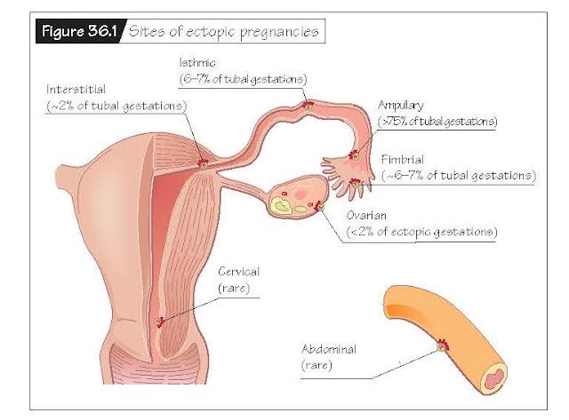 Spontaneous Pregnancy Loss, Recurrent pregnancy loss, Stillbirth, Miscarriage, Ectopic pregnancy