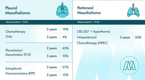 Photo How Long Can You Live with Mesothelioma