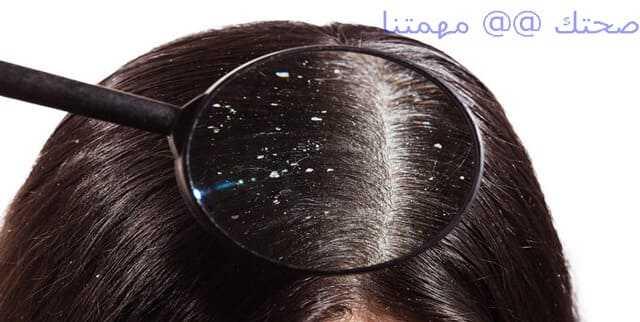 سبب وجود قشرة الشعر