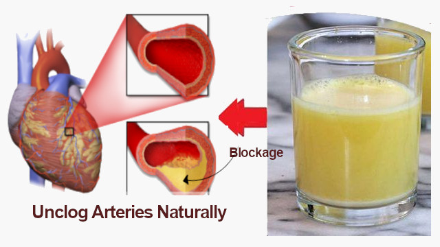 How to Unclog Arteries Naturally and Reduce Risk of Heart Attack