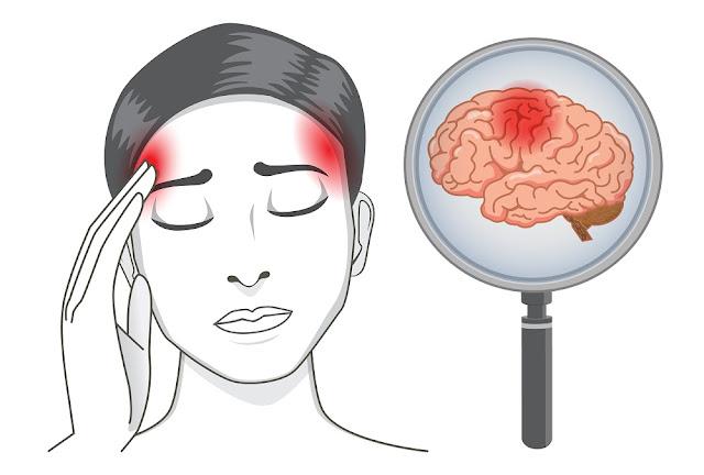Pengobatan sakit stroke dengan Konsep Karnus