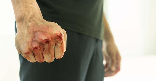 A csabai fiú ellökte mozgáskorlátozott apját és arcon ütötte