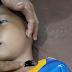 Akibat Kabel listrik Telanjang Berada Ditanah, Bocah 9 tahun di Pematang Ganjang  Tewas Kesetrum.