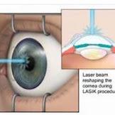 난시를 위한 레이저 눈 치료