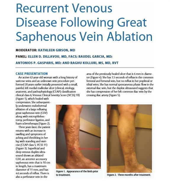 Vascular Mind  CHALLENGING CASES RECURRENT VENOUS DISEASE