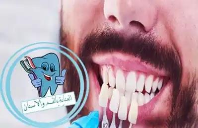 انواع تركيبات الاسنان واسعارها في مصر والدول العربية , تلبيسات الاسنان واسعارها في مصر, تغليف الاسنان, تيجان الاسنان, اسعار تيجان الاسنان في مصر