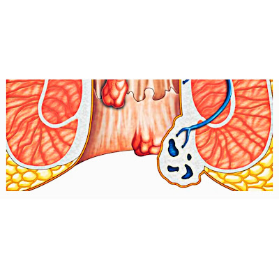 Symptoms and treatment of hemorrhoids
