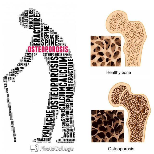 Cegah osteoporosis awal