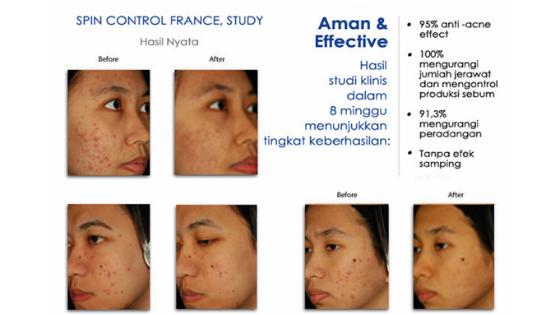 Acnacare Plus Satu-satunya pengobatan alami dan efektif untuk jerawat