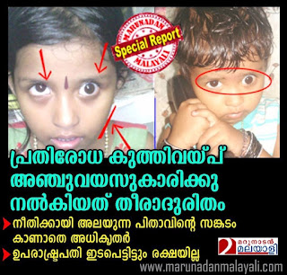 Image result for aparna vaccination side effect
