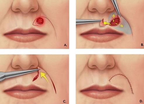 flap techniques facial reconstruction surgery methods face reconstructive surgeries