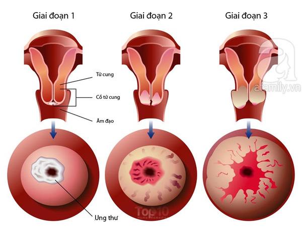Ung thư cổ tử cung có thể xảy ra ở phụ nữ trẻ và cả bé gái-https://songvuikhoemoingay24h