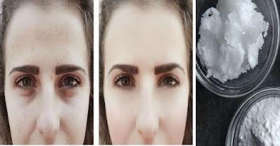 Appliquez de l'huile de coco et du bicarbonate de soude sur votre visage et ce sera l'effet en un mois