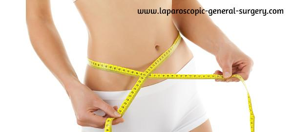 laparoscopic-general-surgery.com/bariatric-surgery/