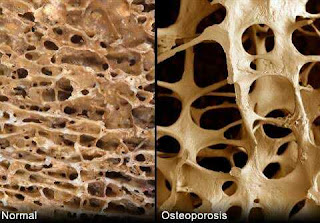 Osteoporosis and dental health