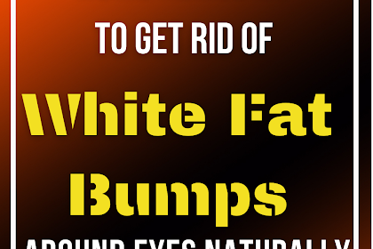 Home Remedies to Get Rid of White Fat Bumps Around Eyes Naturally