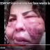 فيديو: متحوّلة جنسيًا تشعل مواقع التواصل الاجتماعي.. حقنوا وجهها بالإسمنت!