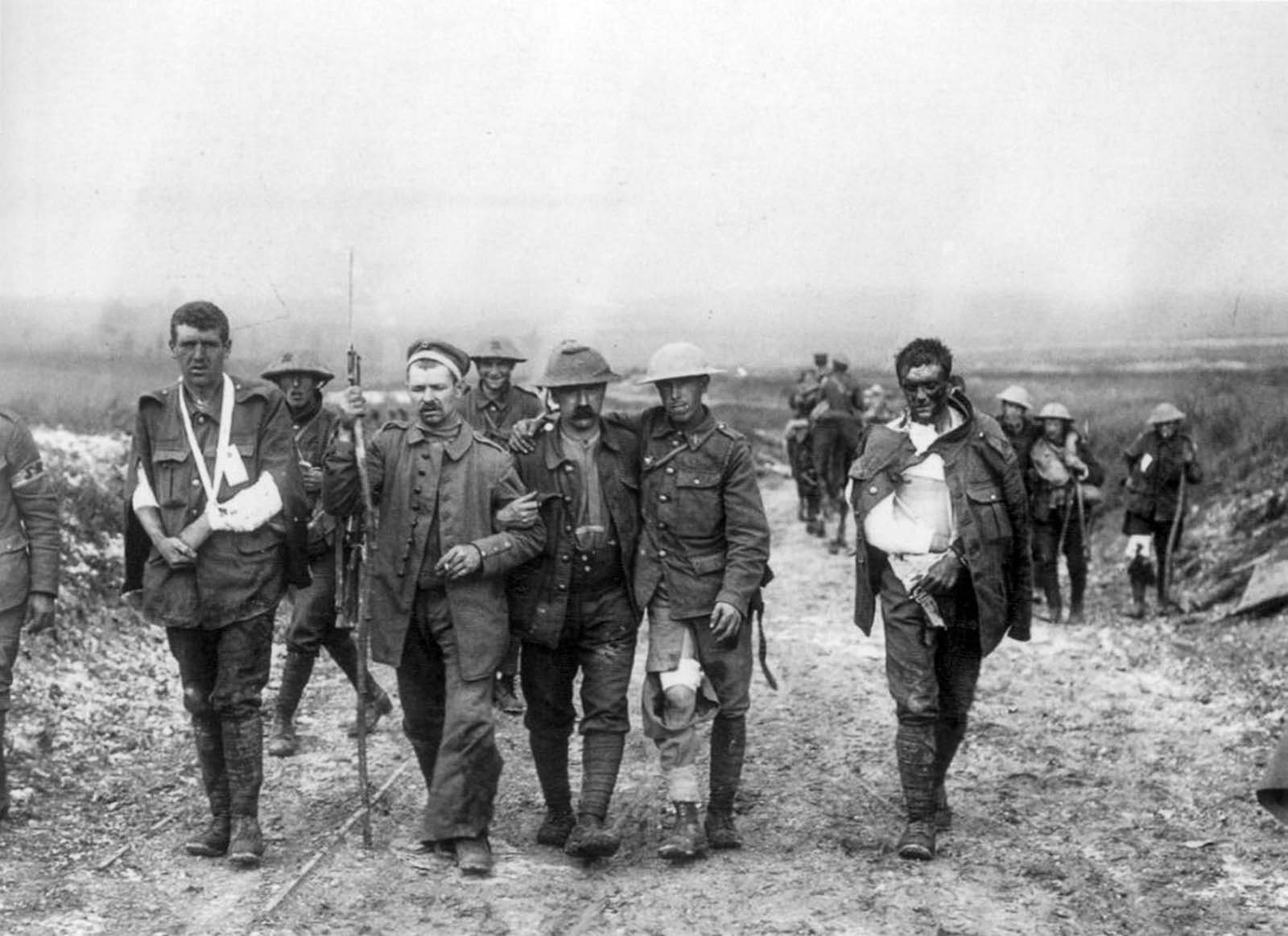 Wounded British soldiers return from the front lines.