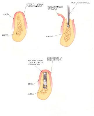 pasos cirugia de implantes dentales