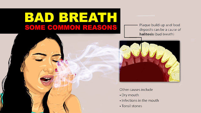 bad breath , bad breath treatment, bad breath test, best remedies for bad breath, types of bad breath smells, foods that cause bad breath, bad breath from stomach acid, how to cure bad breath permanently, foods that give you good breath, bad breath mouthwash, can stress cause bad breath, bad breath in kids, halitosis synonym, what causes bad breath from the stomach, do cavities cause bad breath, breath smells like fart, why does my breath smell like eggs, kotonzo, halitophobia,  bad breath symptoms, bad breath home remedy, palatosis, halitosis mouthwash, bad smell from mouth, odour when flossing one tooth, cancers that cause bad breath, what vitamins make you have bad breath?, kotonzo zota bad breath treatment, can mouthwash cause bad breath, is bad breath a sign of diabetes,