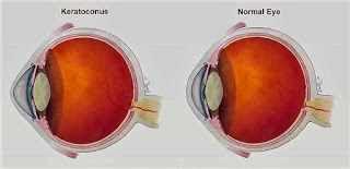 Keratoconus eye vs. Normal eye