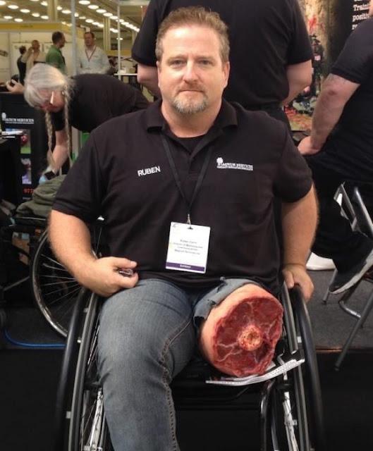 Le amputaron una pierna y usa una prótesis que es épica