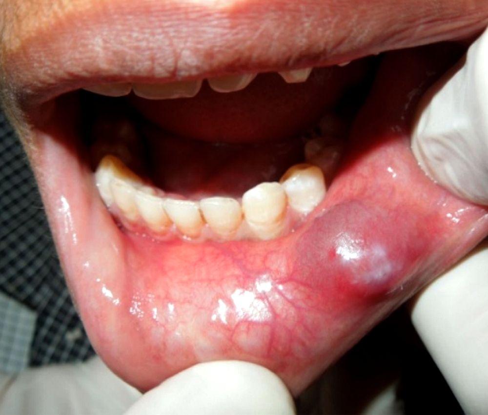 Oral Mucocele