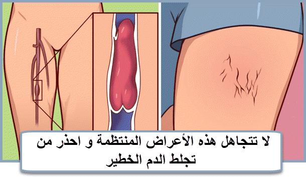 لا تتجاهل هذه الأعراض المنتظمة و احذر من تجلط الدم الخطير