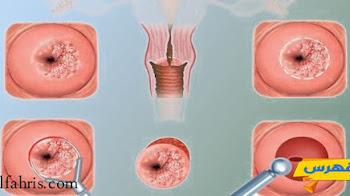 أسباب وأنواع وأعراض قرحة الرحم وطرق علاجها