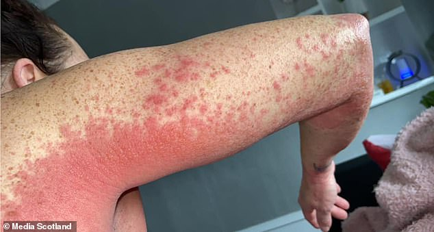Shocking Photos of a Mom as she Suffers Rash All Over her body after taking the AstraZeneca Vaccine