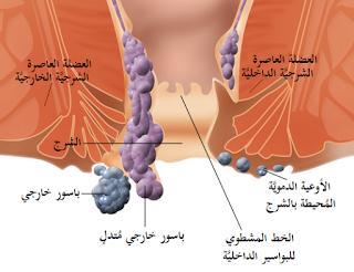 علاج البواسير الانواع الاعراض الاسباب والعلاج