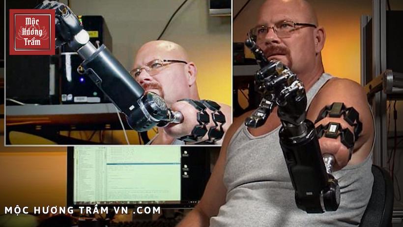 Matheny, một người đàn ông không may mất đi cánh tay của mình năm 2008