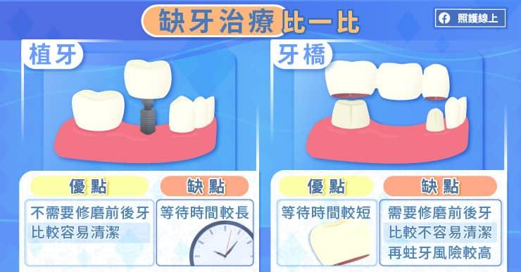 缺牙治療比一比