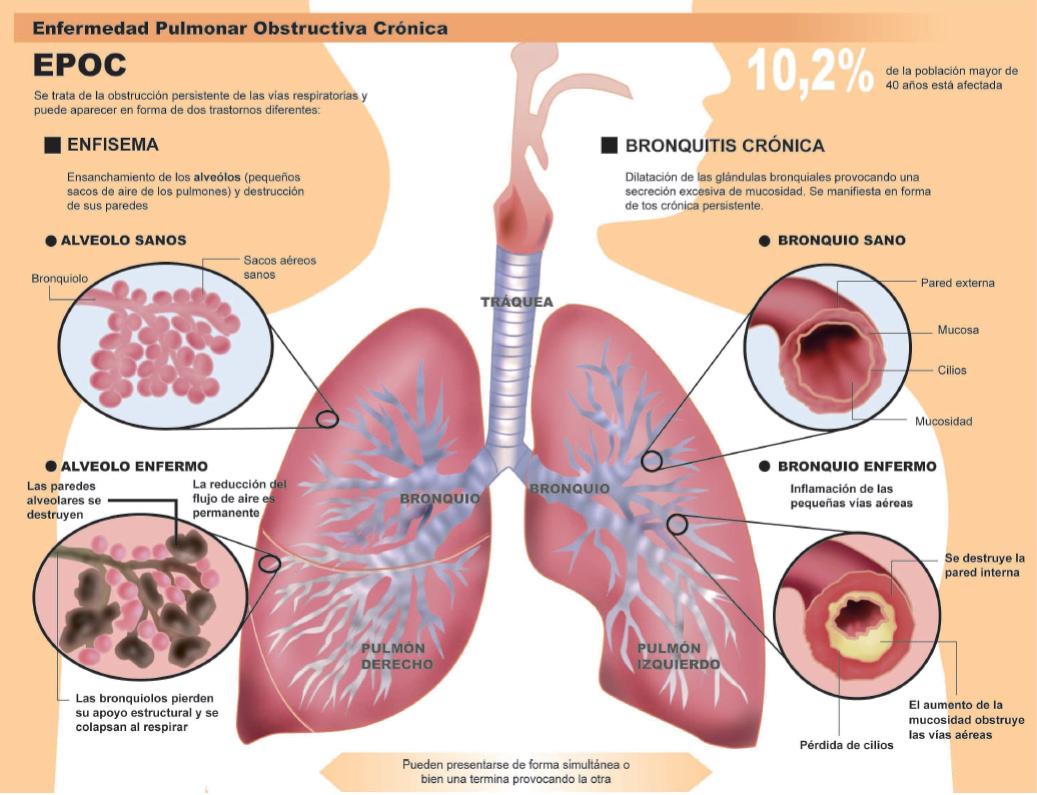 Fibrosis quistica pulmonar fisiopatologia pdf free