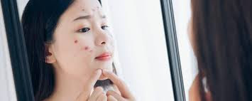 There are several natural ingredients that you can use to solve acne problems on the skin.  Here's how to get rid of pimples on the skin naturally: