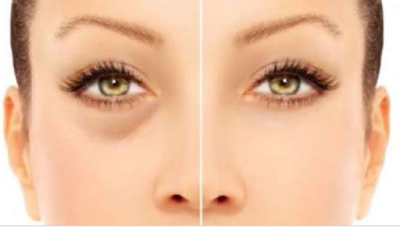 10 Daftar Manfaat Menggunakan Masker Spirulina Untuk Wajah