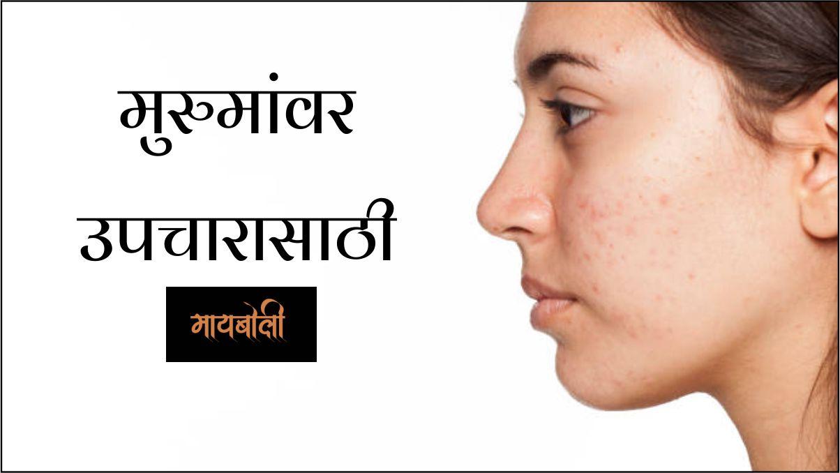Health Benefits Of Castor Oil In Marathi